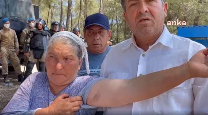 Akbelen Ormanı'nda nöbet tutan İkizköylü kadın: Jandarma kolumu morarttı