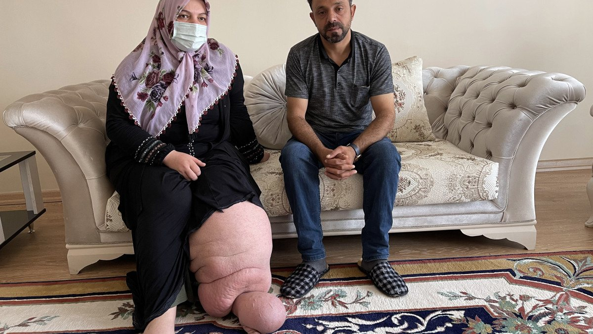 Muş'taki fil hastasının en büyük hayali çorap ve ayakkabı giyebilmek